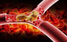 কোলেস্টেরল নিয়ন্ত্রণে রাখবে এই ৭ খাবার
